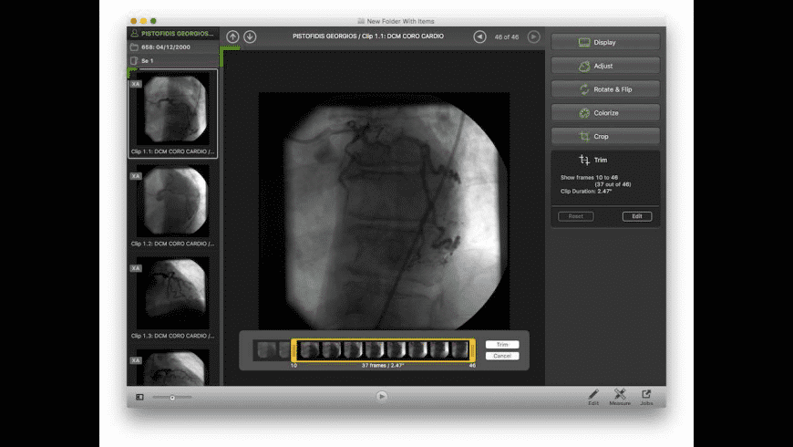 Escape Medical Viewer for Mac - review, screenshots