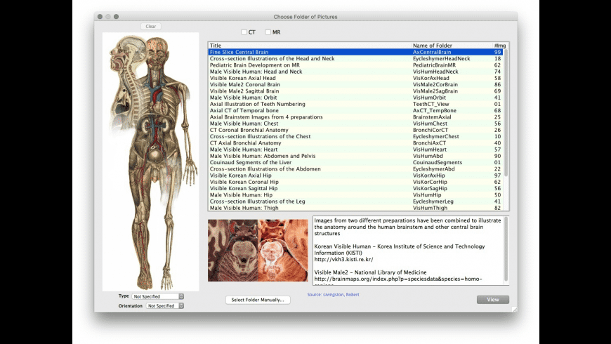 RAAViewer for Mac - review, screenshots