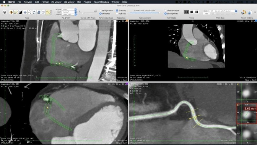 OsiriX MD for Mac - review, screenshots