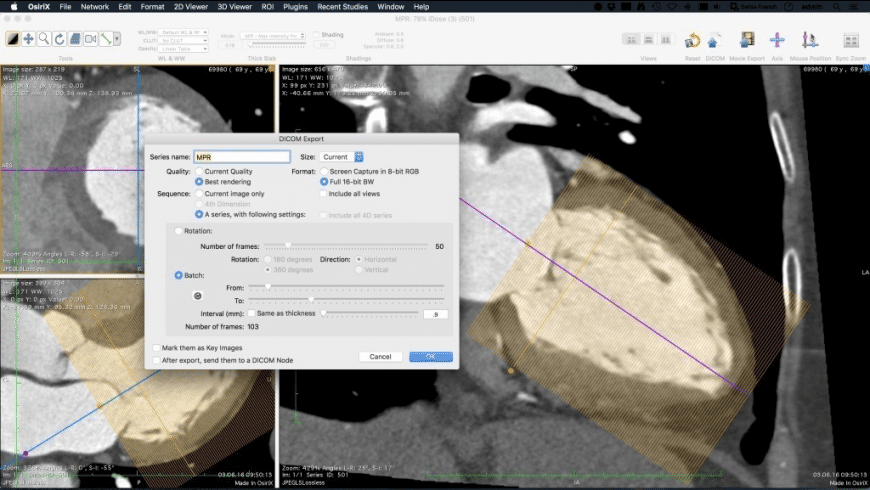 OsiriX Lite for Mac - review, screenshots