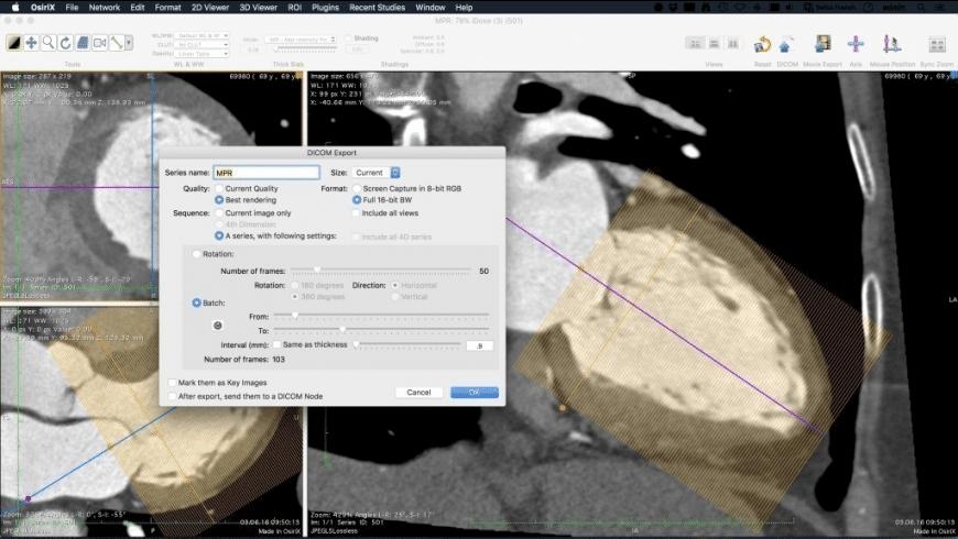 OsiriX Lite for Mac - review, screenshots
